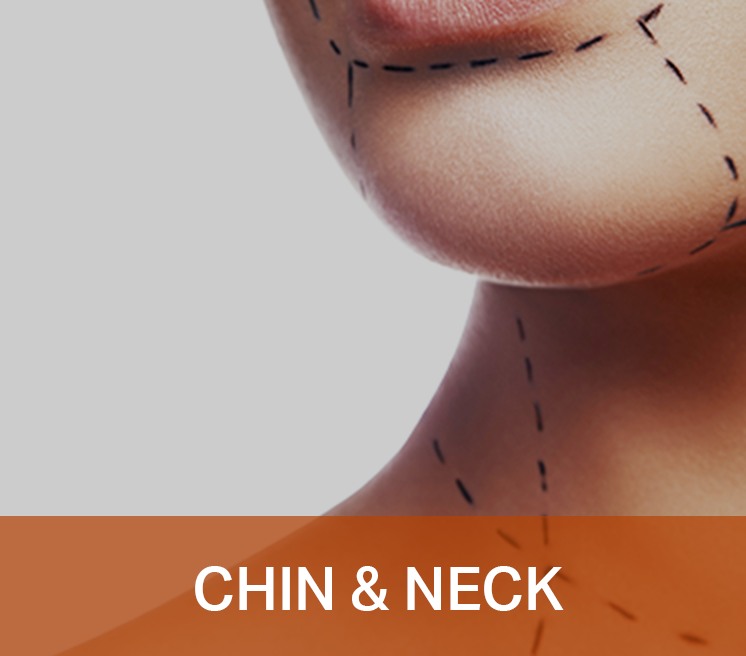 Chin & Neck Icon Thumbnail