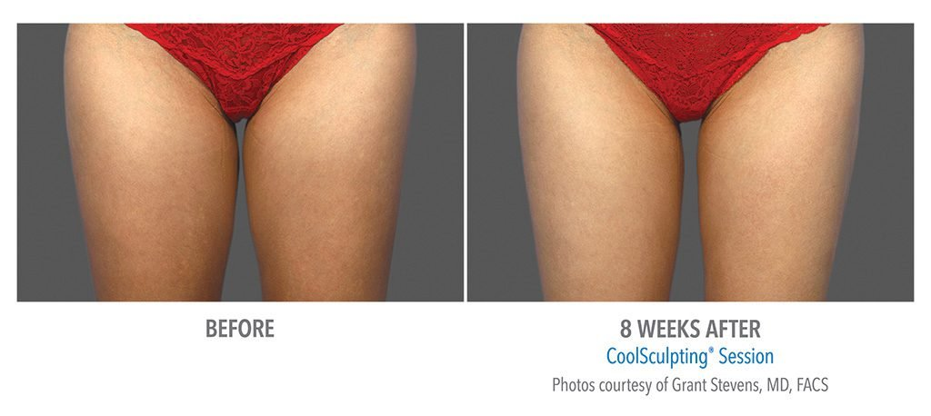 THIGHS & LEGS BEFORE AFTER COOLSCULPTING RESULTS