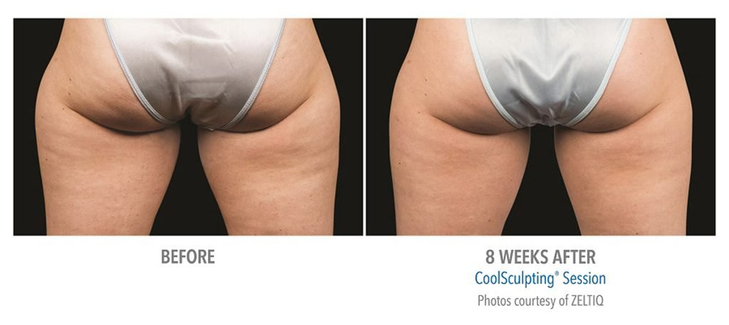 THIGHS & BUTT BEFORE AFTER COOLSCULPTING RESULTS