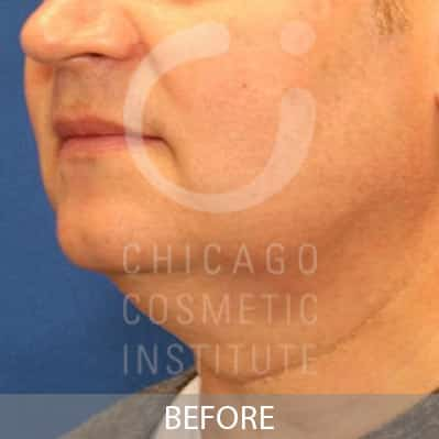 After CoolSculpting Neck Treatment Image of a Man