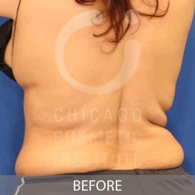 After CoolSculpting Flanks Treatment Image of a Woman